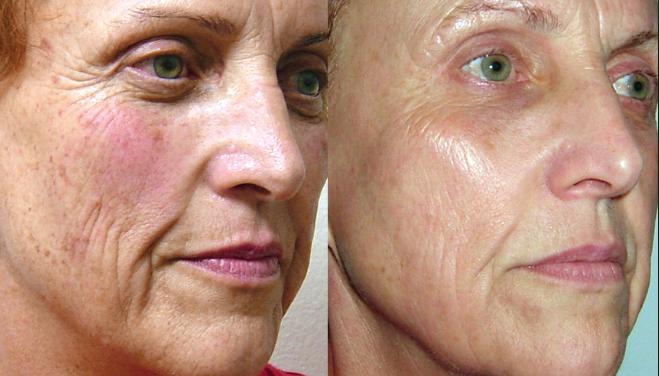 Nyc facial rejuvenation
